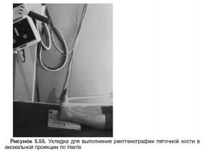 Проекция для пяточной кости.