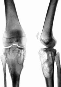 Проекция коленного сустава.