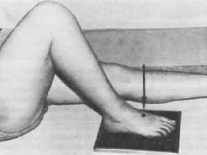 Рентгенограмма стопы - прямая тыльная проекция.