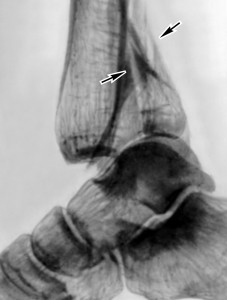 Рентгенограмма голеностопного сустава.