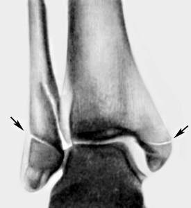 Рентгенограмма голеностопного сустава в прямой проекции.