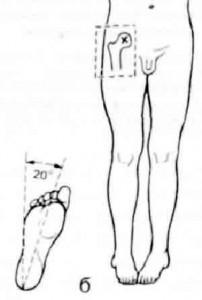 Рентгенограмма тазобедренного сустава.