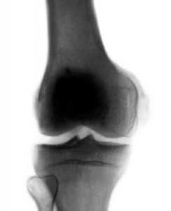 Рентгенограмма коленного сустава.