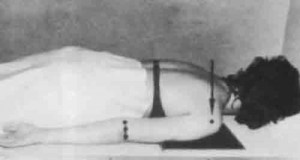 Укладка для выполнения рентгенограммы тазобедренного сустава.