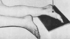 Укладка для выполнения рентгенограммы стопы в боковой проекции.