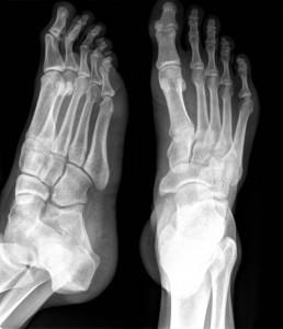 Кость пальцев стопы.