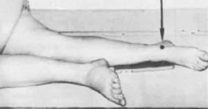Укладка к выполнению рентгенограммы голеностопного сустава.