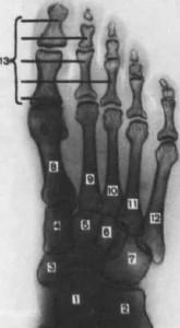 Кубовидная кость в подошвенной проекции.