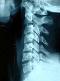 Рентгенограмма в боковой проекции.