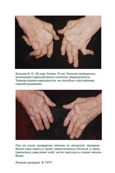 Артроз суставов кистей рук.